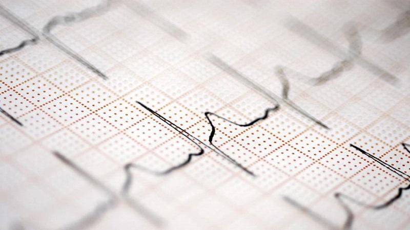 تفاوت تست نوار قلب با اکوی قلب در چیست دکتر مهرداد طاهریون متخصص قلب اصفهان