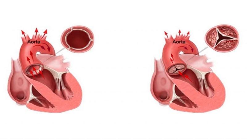 تشخیص و درمان تنگی دریچه آئورت | متخصص قلب اصفهان