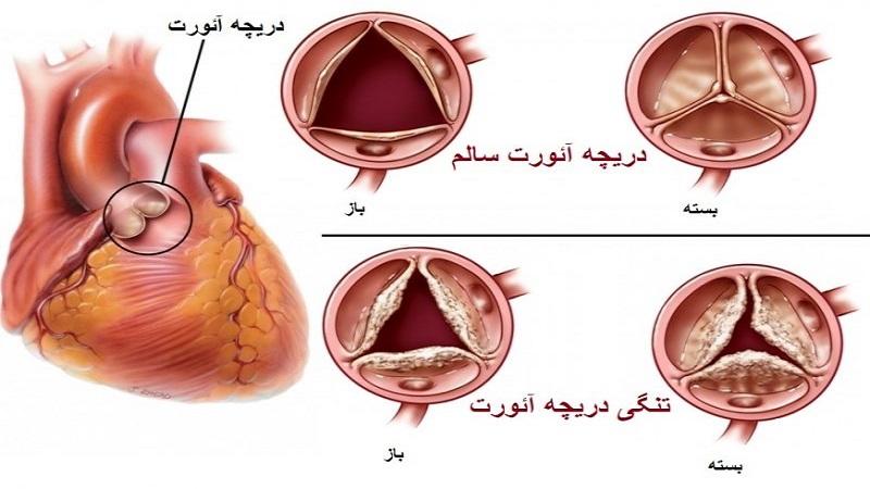 تشخیص و درمان تنگی دریچه آئورت   متخصص قلب اصفهان