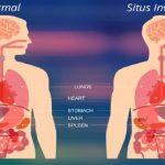 قلب سمت راست یا دکستروکاردی چیست | متخصص قلب اصفهان