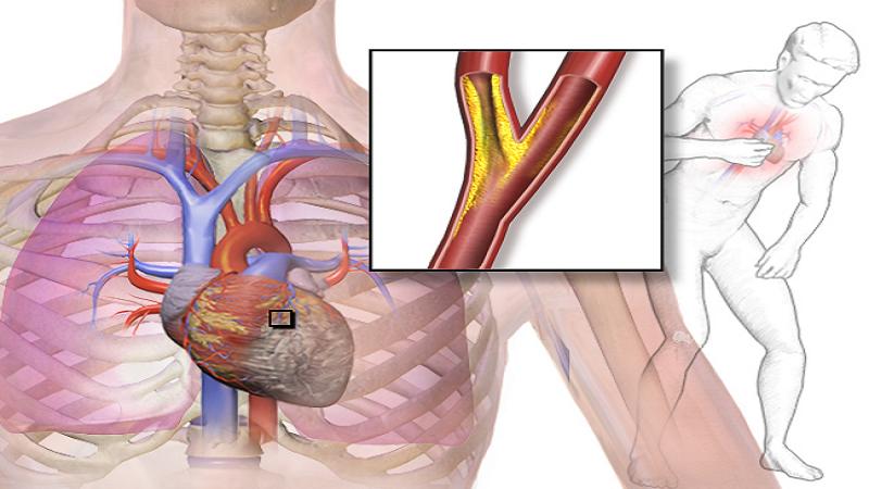 علائم و علل آنژین قلبی کدامند   متخصص قلب اصفهان